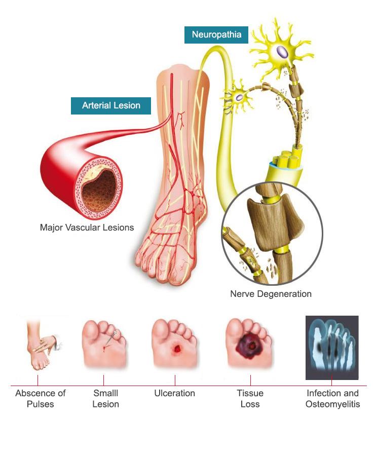 Foot problems in Diabetes